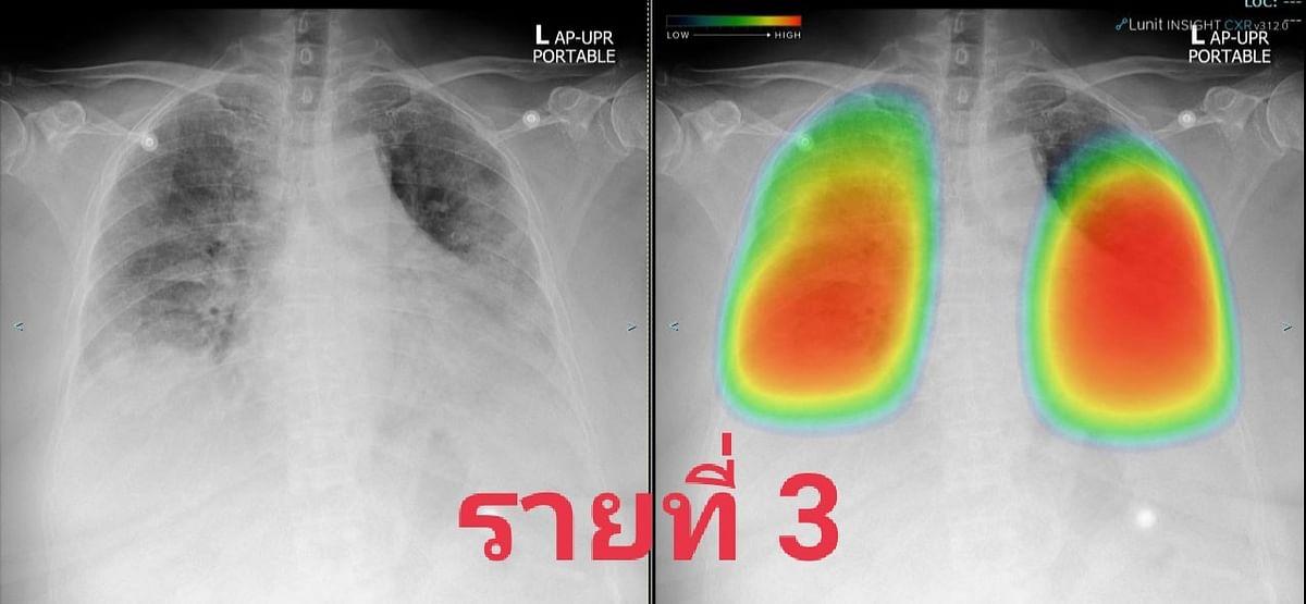 ตัวอย่างเอกซเรย์ปอดของผู้ป่วย รายที่ 2