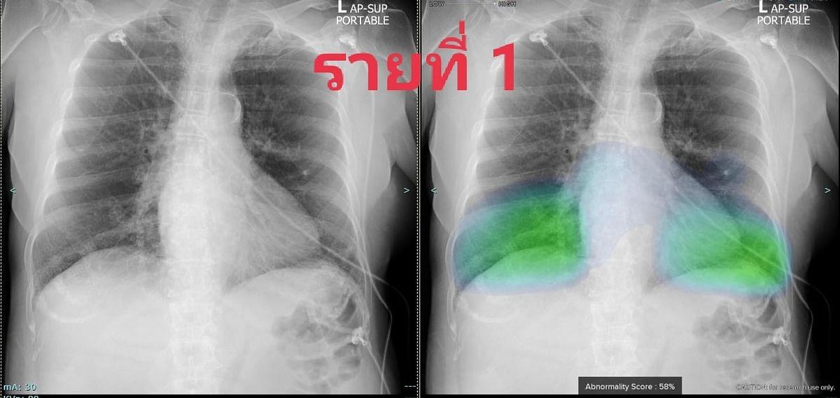 ตัวอย่างเอกซเรย์ปอดของผู้ป่วย