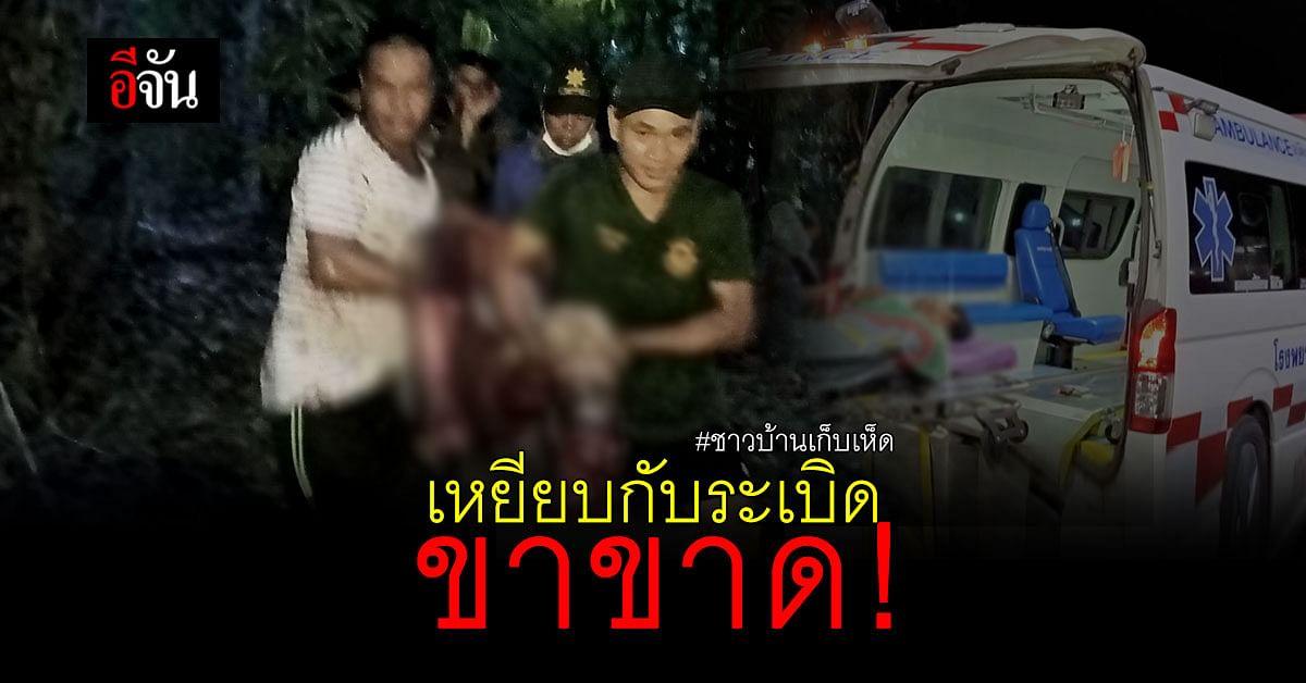 ชาวบ้านเข้าป่าเก็บเห็ด เหยียบกับระเบิด ขาขาด