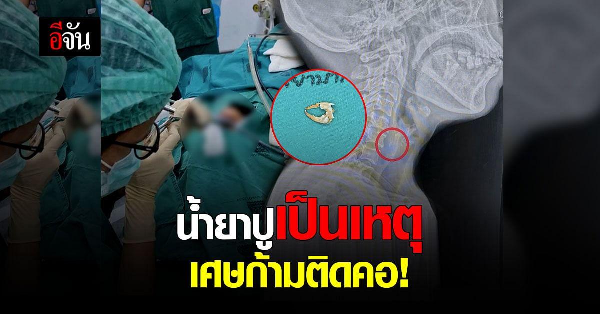 ขนมจีนน้ำยาปูเป็นเหตุ เศษก้ามติดคอ เข้าห้องผ่าตัดด่วน