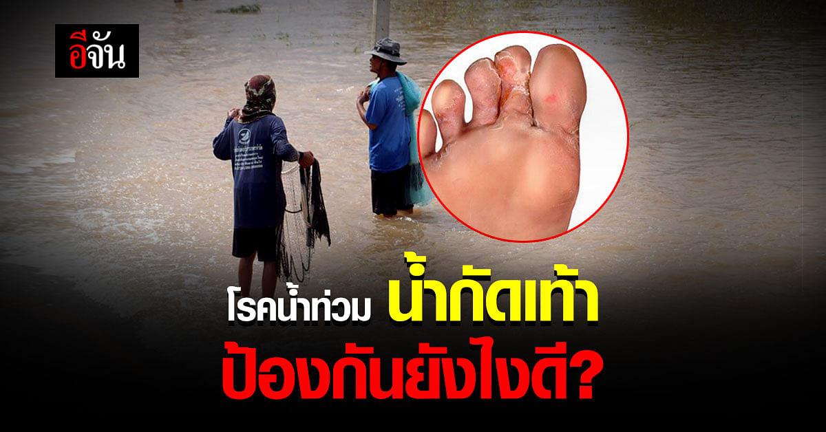 เลี่ยงไม่ได้ ลุยน้ำ จนน้ำกัดเท้า ป้องกัน เเละรักษายังไงดี
