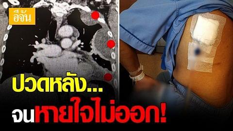 หมอโพสต์เตือน ปวดหลัง อย่าชะล่าใจ! หลังเจอผู้ป่วย ปอดติดเชื้อ-มีน้ำในเยื่อหุ้มปอด หลังปวดหลังนาน 2  สัปดาห์