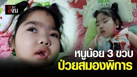 """""""น้องใบเตย"""" หนูน้อยวัย3 ขวบ ป่วยพิการทางสมอง ครอบครัวขัดสน - แม่วอนช่วยเหลือค่ารักษา"""