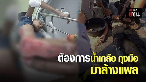 หนุ่มร้องเพจอีจัน รถ จยย.ล้ม รถสิบล้อเหยียบซ้ำ ถูกตัดขา ต้องการน้ำเกลือ ถุงมือ ล้างแผล