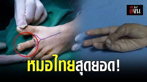 หมอไทยเก่ง ผ่าตัดเอานิ้วเท้ามาเป็นนิ้วหัวแม่มือ