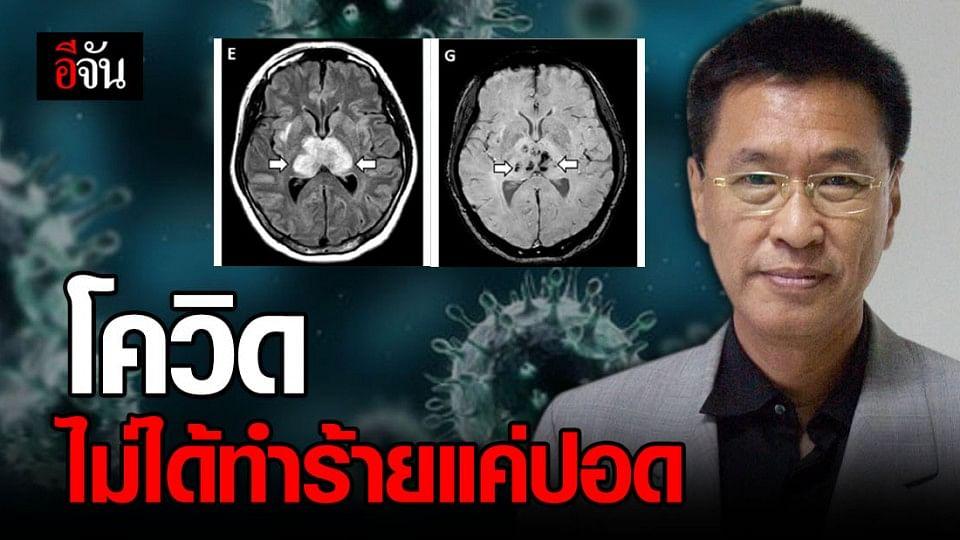 หมอชี้ โควิด-19 ไม่ได้ส่งผลแค่ปอด แต่มีผลต่อ สมองและหัวใจ ด้วย