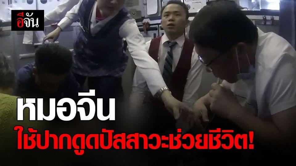 น่าชื่นชม หมอจีน ใช้ปากดูดปัสสาวะช่วยชีวิตคนไข้ต่อมลูกหมากโต บนเครื่องบิน