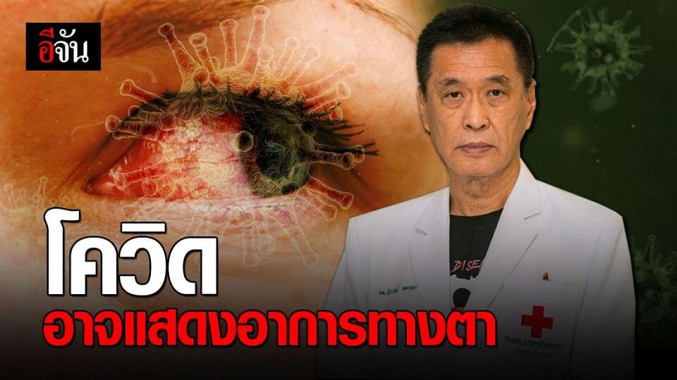 หมอธีระวัฒน์ ชี้ โอกาสกว่า 30% ที่โควิด-19 จะแสดงอาการทางตา
