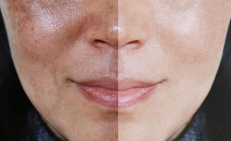 remove dark spots on the face
