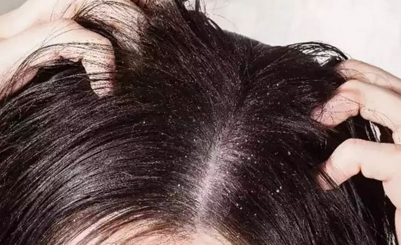 केसांमध्ये कोंडा आणि खाज होत असेल तर फॉलो करा 'या' टिप्स