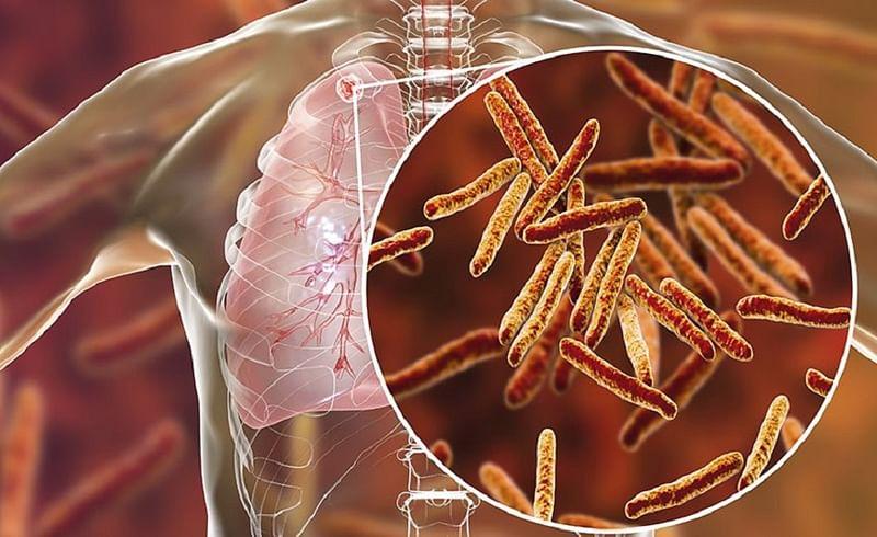 TB बाधित रुग्णांवर कोरोनाचा कोणताही परिणाम नाही? जाणून घ्या असं का होतंय..