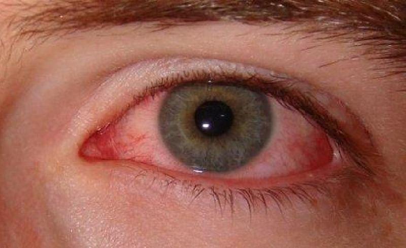 sore eyes corona symptoms