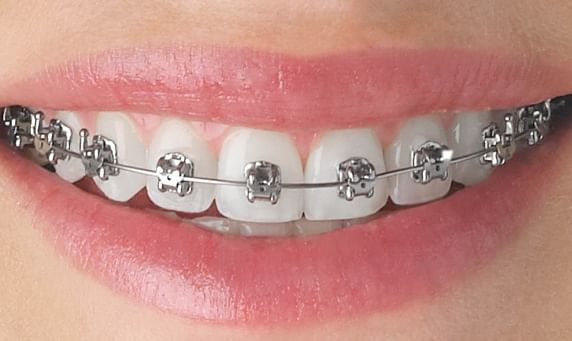 Braces don't always bring happiness