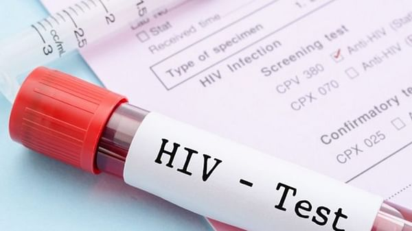 Amid pandemic, HIV testing takes a backseat