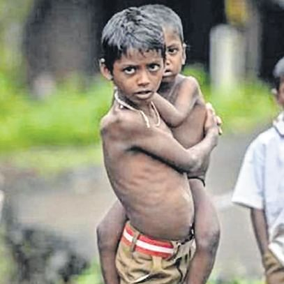 Wealthiest state in India is home to 5.5 lakh malnourished kids