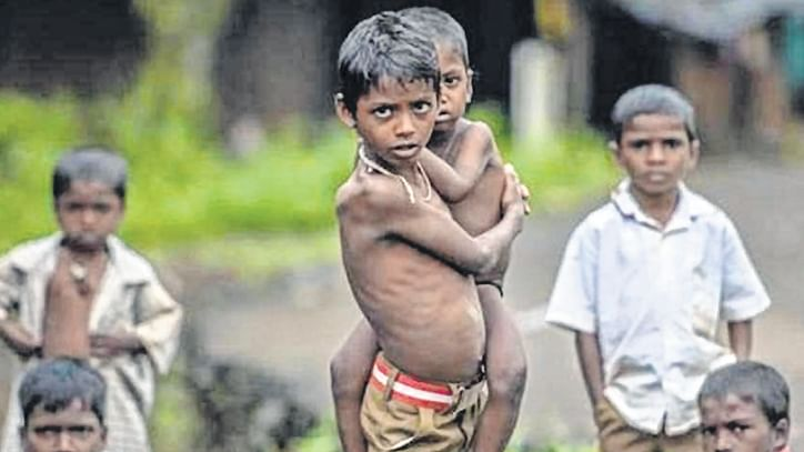 Covid lockdown added to sufferings of malnourished children in MP