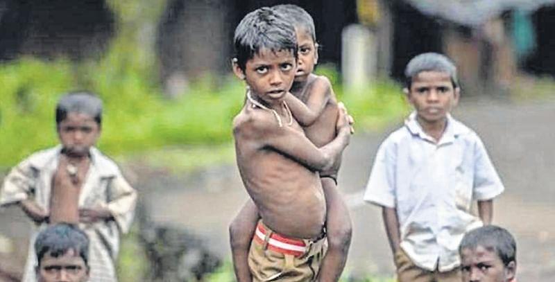 Detected: 157 malnourished children in Mira-Bhayandar