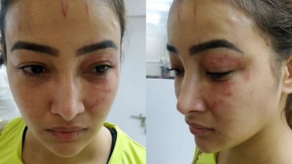 Mumbai: TV actress beaten by roommate