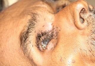 Shivpuri: Ants crawling on body; Two Shivpuri doctors, three nurses suspended