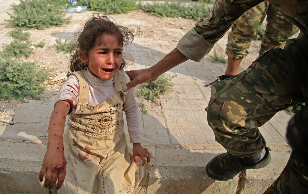 A Syrian girl reacts to her wounds in the Syrian border town of Tal Abyad which was seized by Turkey last week.