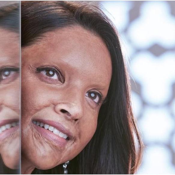 Chhapaak: Deepika Padukone starrer fails to work wonders, mints Rs 7.35 crore on Sunday