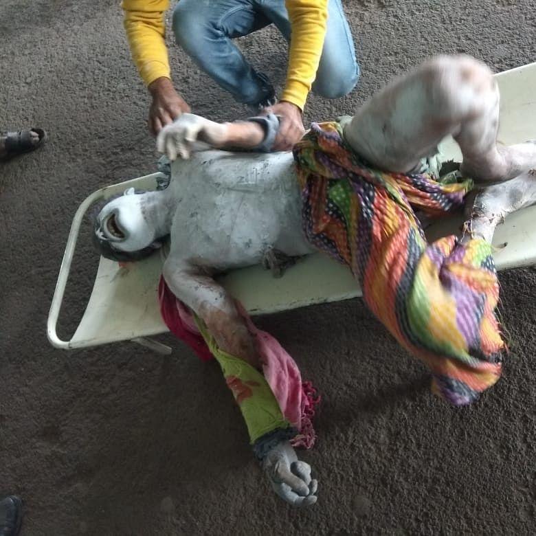 Bhopal: Man jumps off bridge at railway station, sustains 90 % burns