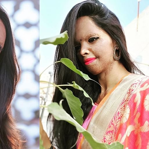 Laxmi Agarwal absent from 'Chhapaak' trailer launch: Where is the real acid attack survivor?