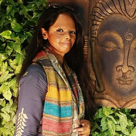 Real acid attack survivor Laxmi Agarwal paid only Rs 13 lakh for 'Chhapaak'?