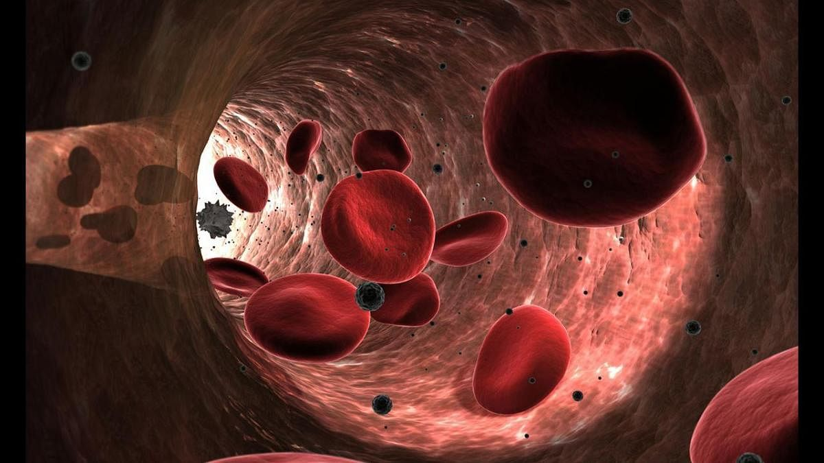 Study reveals women's blood vessels age faster than men's
