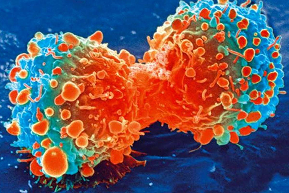 Neurologic, BP meds may reduce breast tumour growth