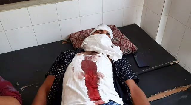 Coronavirus in Rajasthan: Five cops injured in attack in Kasai Mohalla area in Tonk during curfew, hospitalised