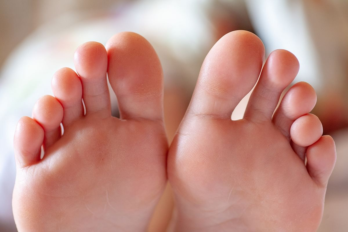 What is COVID toe? New symptoms seen in COVID-19 patients