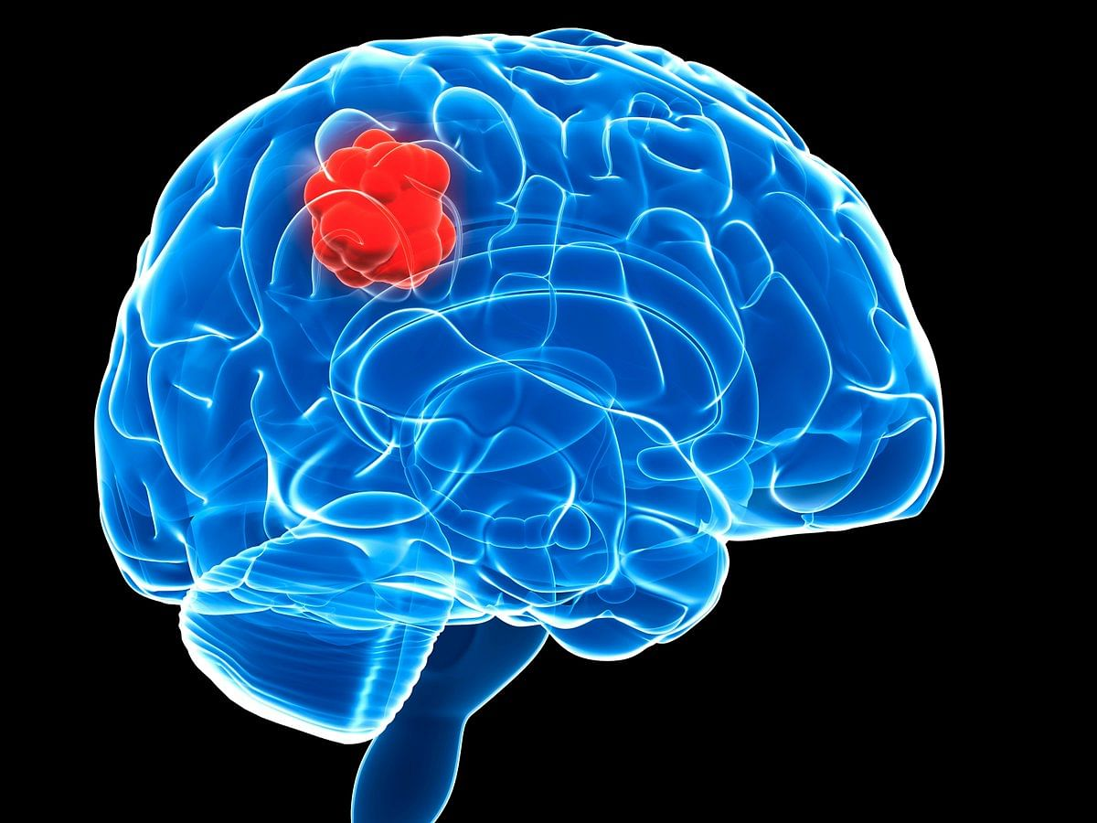 Schizophrenia drug combined with radiation shows promise in treating deadly brain tumours, says study