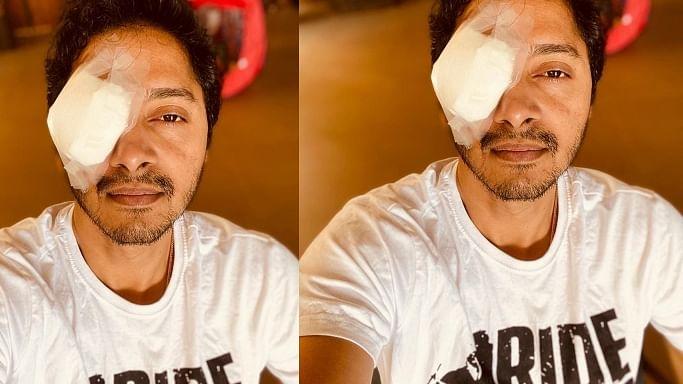 Shreyas Talpade shares selfie with bandage over the right eye, reveals he had cornea abrasion