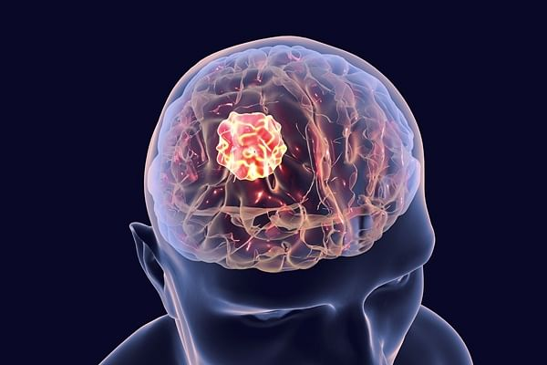 Schizophrenia medicie may help treat deadly brain tumours