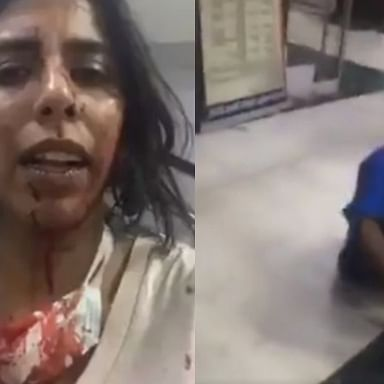 Watch: Delhi animal rescuer brutally attacked, police refuses to file FIR - story so far