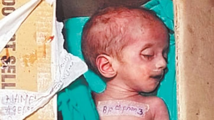 Indore: Infant's body kept for 5 days in MYH mortuary freezer