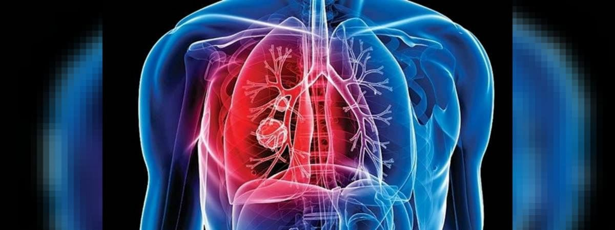 Mumbai: Tuberculosis patients down by 29%