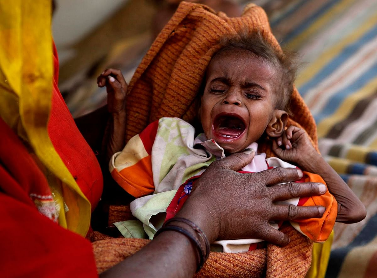 Malnourishment responsible for many deaths in Madhya Pradesh