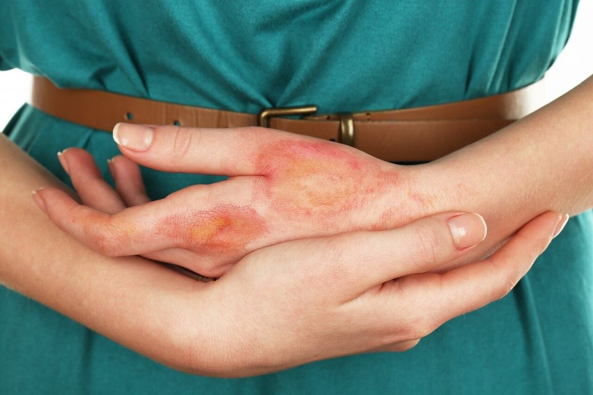 Covid fallout: Skin donation drops by 90%