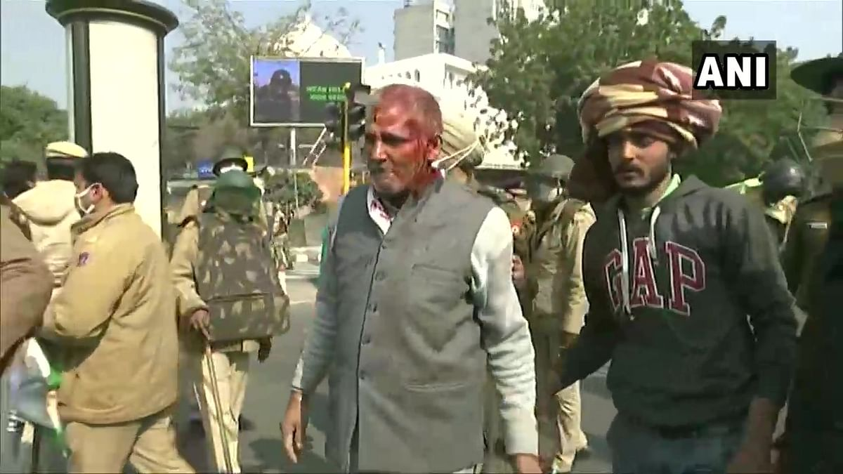 A protesting farmer injured during the clash with Police near ITO