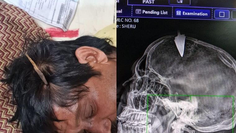 Indore: MYH doctors remove arrow from man's skull after goons headshot him