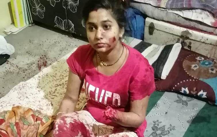 Victim with chopped wrist