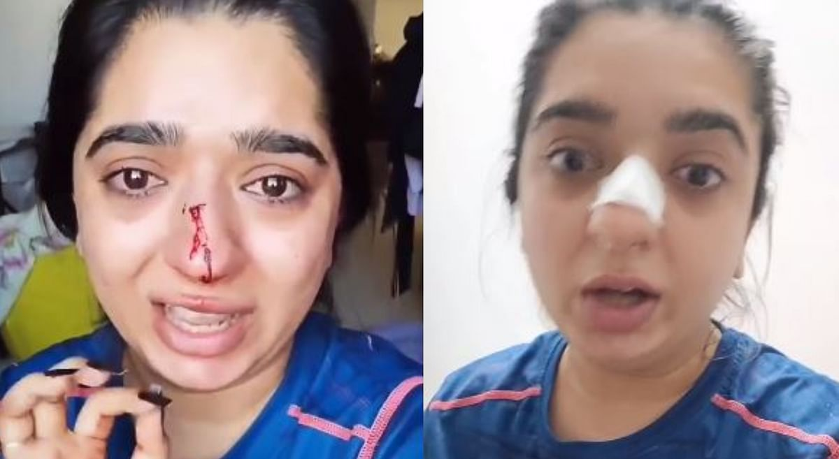 Zomato delivery man assaults Bengaluru women