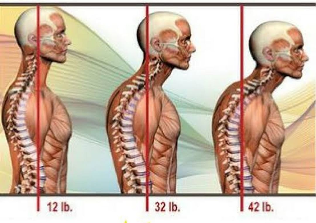 Every inch of increase of forward head posture increases weight of the head by 10 pounds