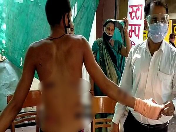 Ajay Ganwane, the vegetable seller, said he was beaten severely and has injury marks on his body