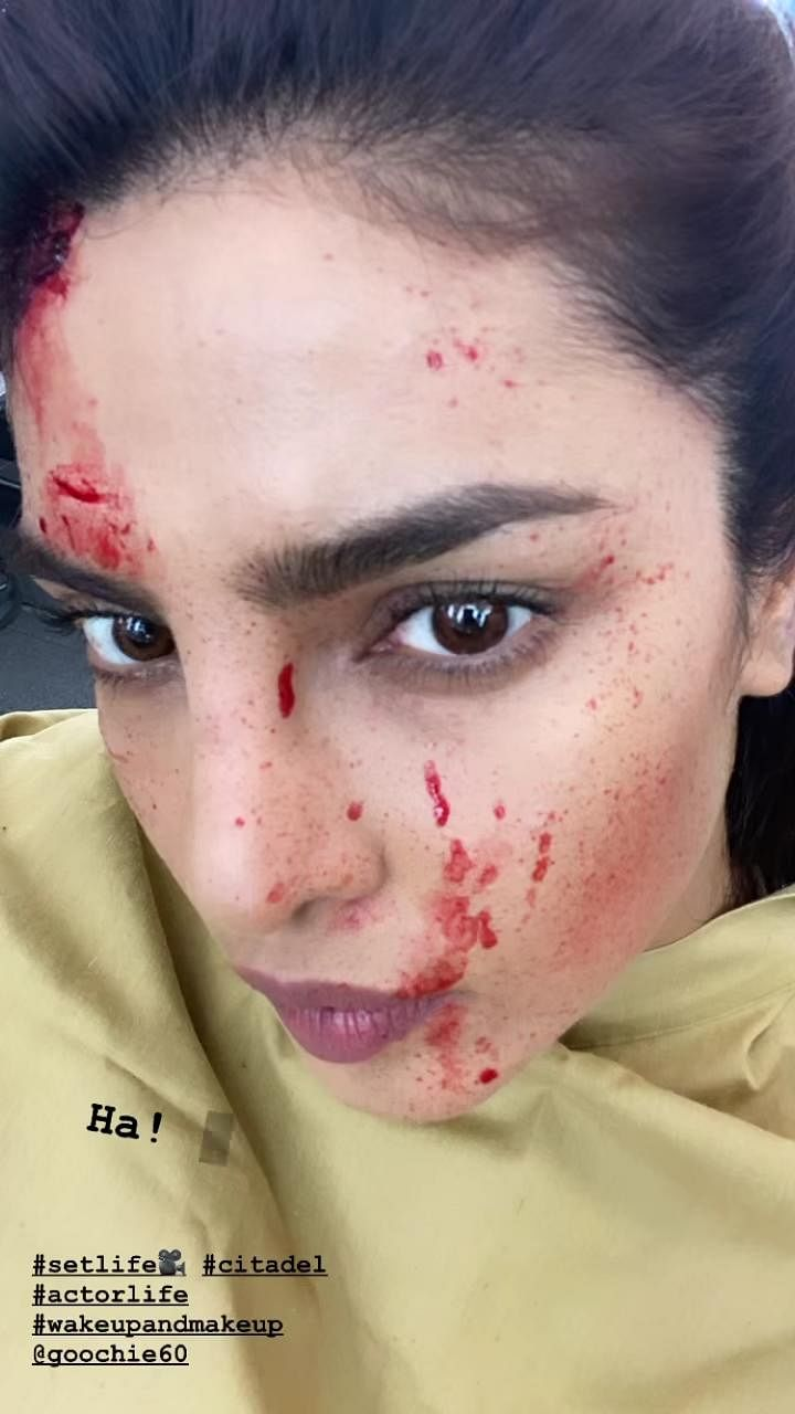 Priyanka Chopra Jonas shares a 'bloody' selfie from 'Citadel' sets