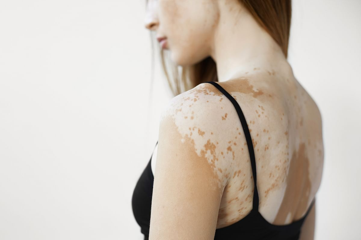Simply Su-Jok: What is vitiligo and how to manage it?