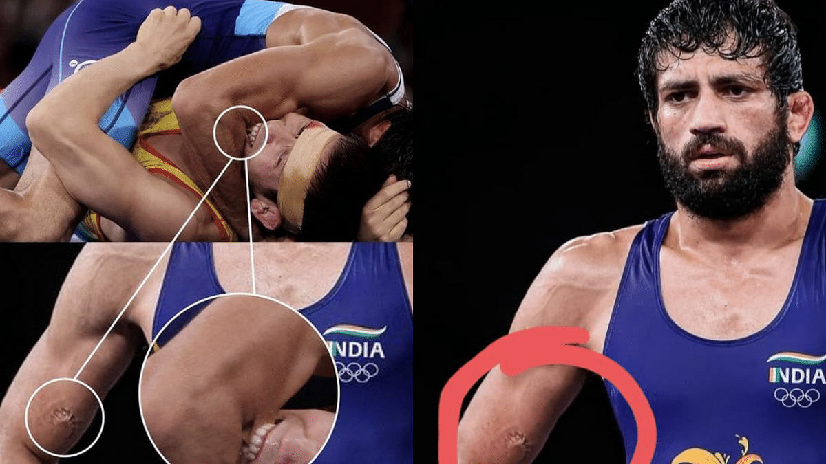 'How unfair is this': Wrestler Nurislam Sanayev bites Ravi Dahiya during Olympics semi-final; Sehwag, netizens condemn the act
