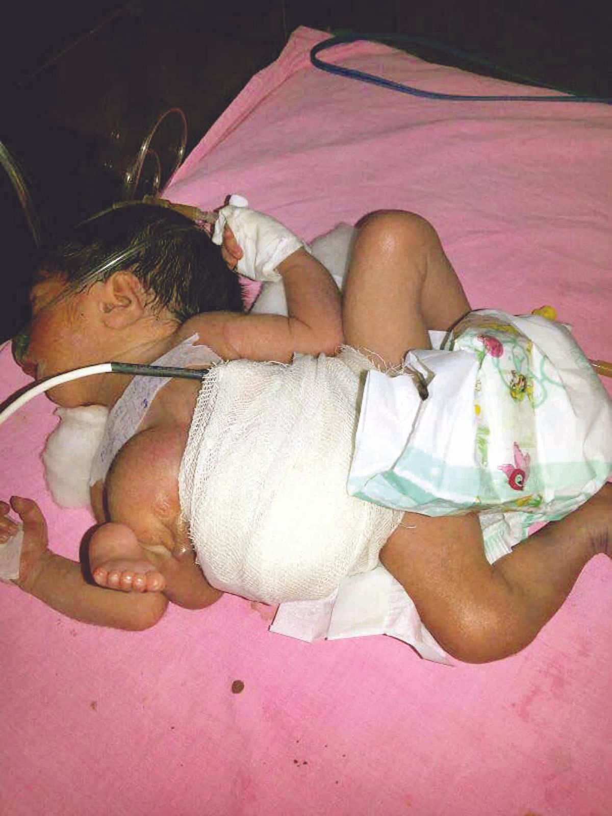 Baby with 3 legs, complications born in Indira Gandhi Hospital